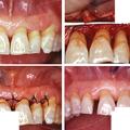 chirurgia ossea ricostruttiva odontoiatria falmed centro medico pescara circle