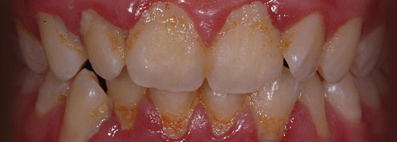 denti tartaro falmed centro medico