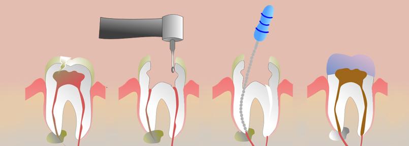 endodonzia falmed centro medico pescara