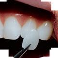 faccette ceramica odontoiatria falmed centro medico pescara circle