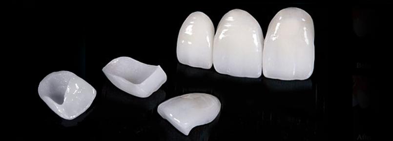 faccette dentali in ceramica falmed centro medico