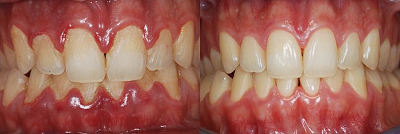 igiene orale falmed centro medico