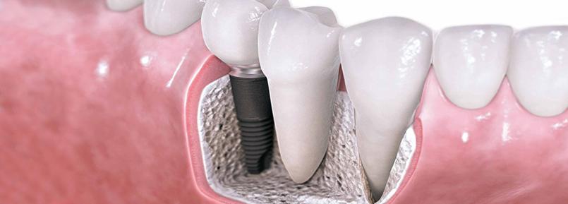 impianto dentale falmed centro medico
