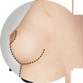 mastoplastica additiva chirurgia estetica falmed centro medico pescara
