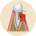paradontologia odontoiatria falmed centro medico pescara circle