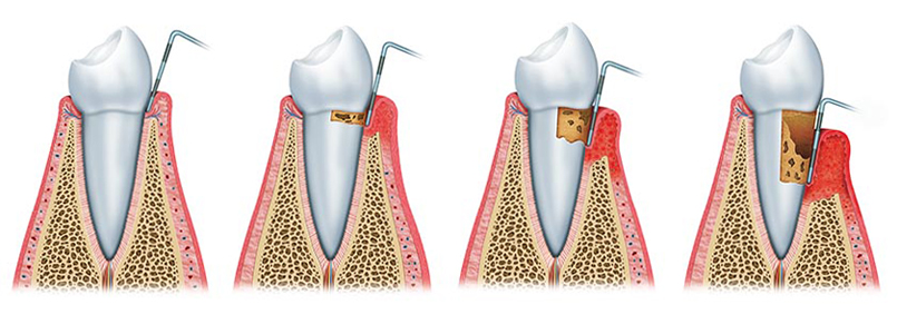 parodontologia falmed centro medico pescara