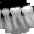 radiologia dentale odontoiatria falmed centro medico pescara circle