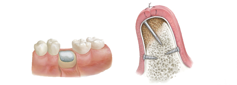 rigenerazione ossea falmed centro medico