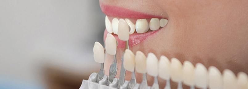 sbiancamento dentale professionale falmed centro medico