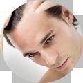 trapianto capelli chirurgia estetica falmed centro medico pescara