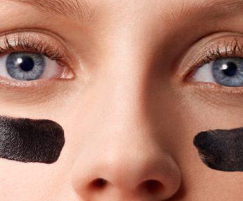 filler occhiaie chirurgia estetica falmed